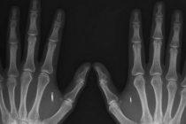 Más de 10 mil personas ya se implantaron en el cuerpo un chip informático
