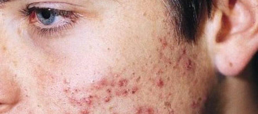 'Maskne', surge nuevo acné por el uso de cubrebocas